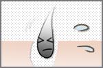 エステサロンで行うデリケートゾーン脱毛のメリット